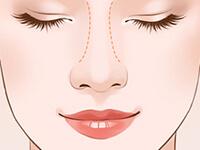 鼻小柱整形