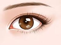 眼部失败修复